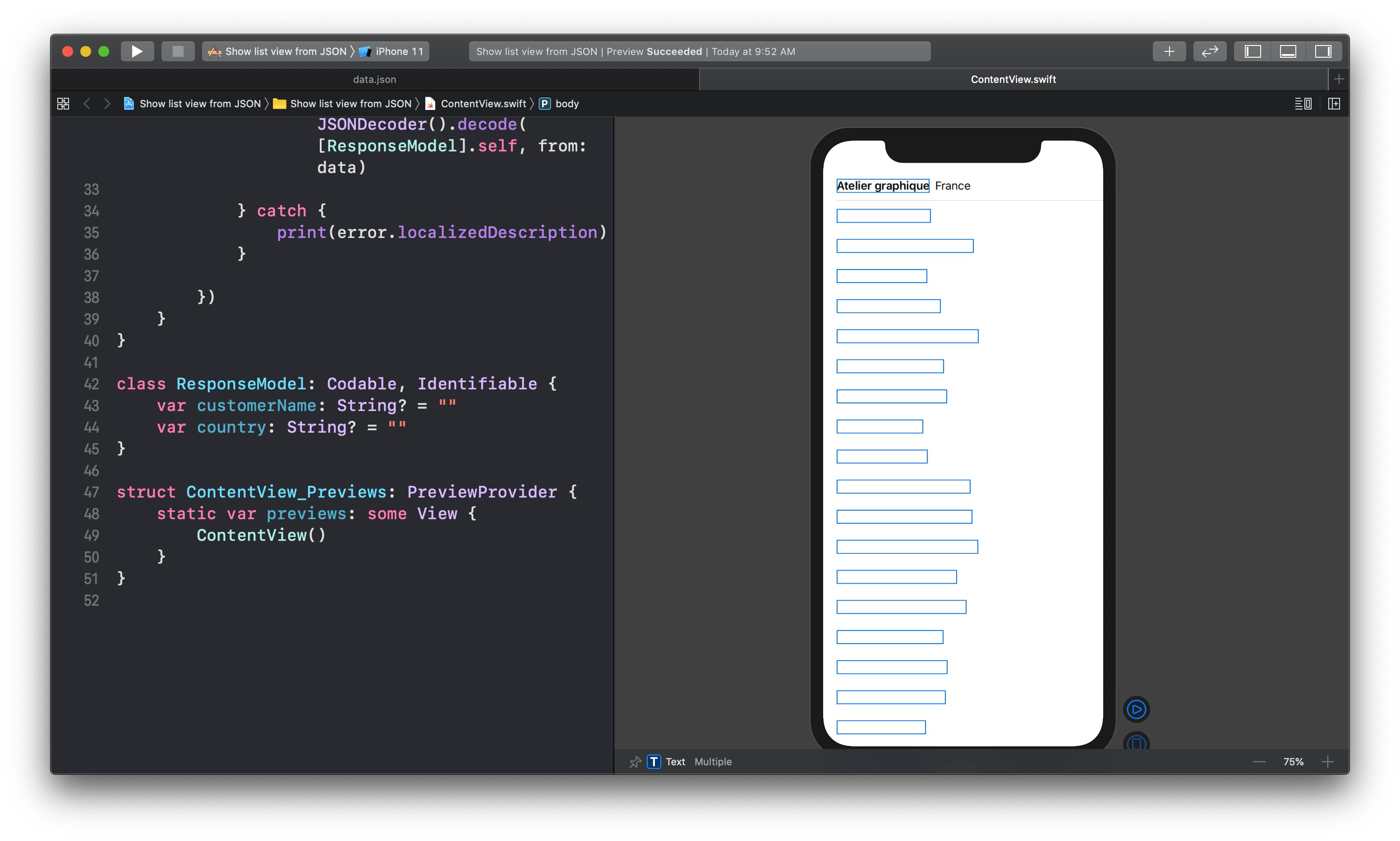 Show API data in XCode preview - Swift UI